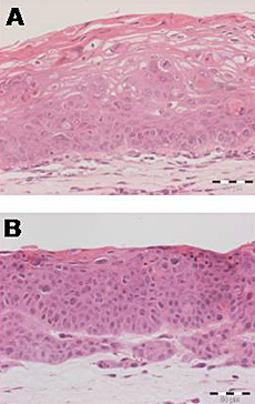 The W12 cell line system is an accurate model of progression from low-grade pre-cancer (A) to squamous cell carcinoma (B).