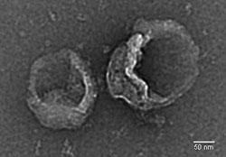 Exosomes-TEM