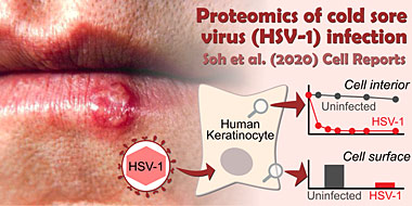 Proteomics of HSV-1 infection