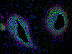 A mammary gland terminal end bud fluorescently stained with antibodies to the cell adhesion protein E-cadherin (green) and the marker of proliferation PCNA (red) with the nuclei of the cells in blue.